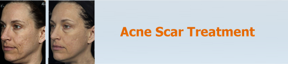 Acne Scar Treatment in Hyderabad, Acne/Pimples  Scar Treatment