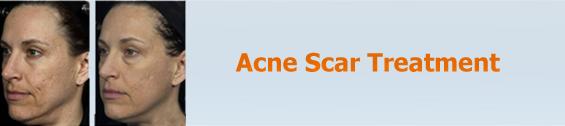 Acne/Pimples  Scar Treatment
