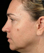 Skin Complexion Treatment in Hyderabad, Before & After – Laser Face Lift