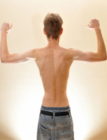 Weight Reduction Treatment in Hyderabad, Under Weight Treatment