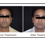 , Pimples Treatment with Super Peel in Hyderabad