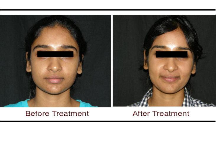 , Skin Lightening Treatment in Hyderabad