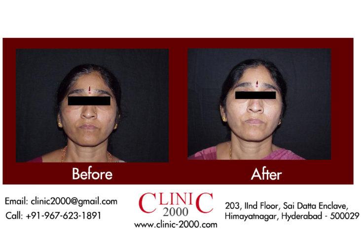 , Dark Spot Removal Treatment