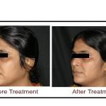, E plus Laser Skin Tightening in Hyderabad