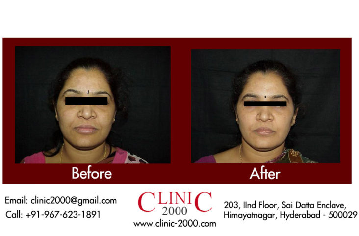 , Laser Treatment for Dark Spots on face