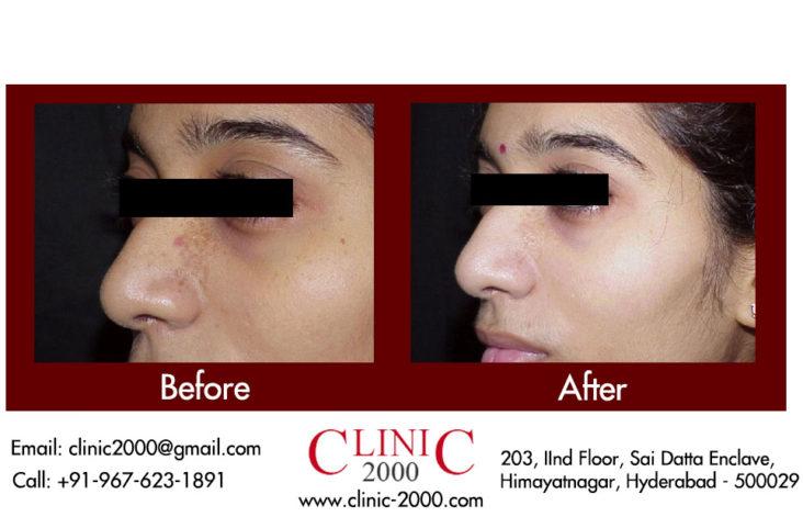 , Facial Acne Treatment