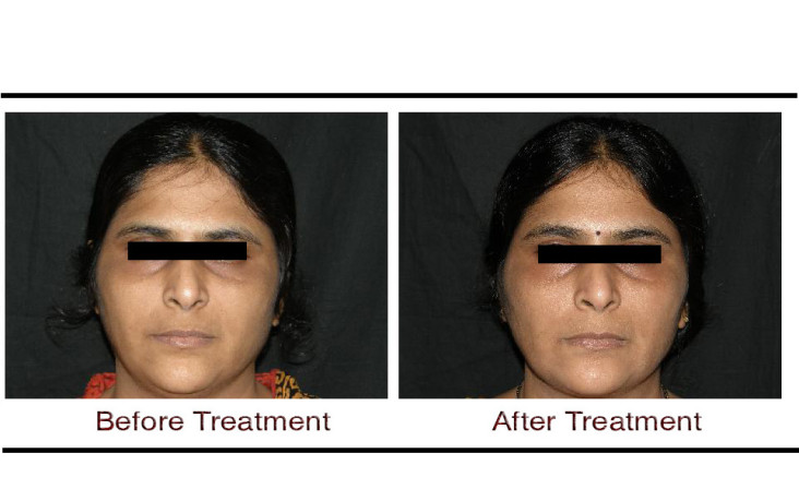 , Skin Polishing Treatment in Hyderabad