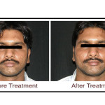 Permanent Hair Removal Treatment in Hyderabad, Hair Treatments