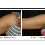 , Laser Skin Treatment in Hyderabad
