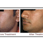 Pigmented Skin Treatment in Hyderabad, Skin Treatments