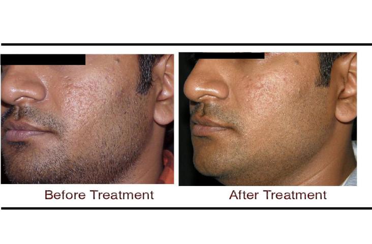 , Skin Pigmentation Treatment in Hyderabad