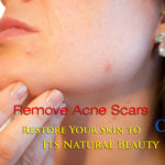 Laser Treatment For Acne Scars in Hyderabad, Acne Scar Treatment – Laser Treatment For Acne Scars in Hyderabad
