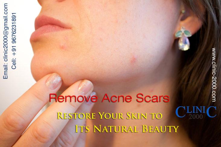 , Acne Scar Treatment in Hyderabad
