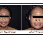 , Thermage Treatment
