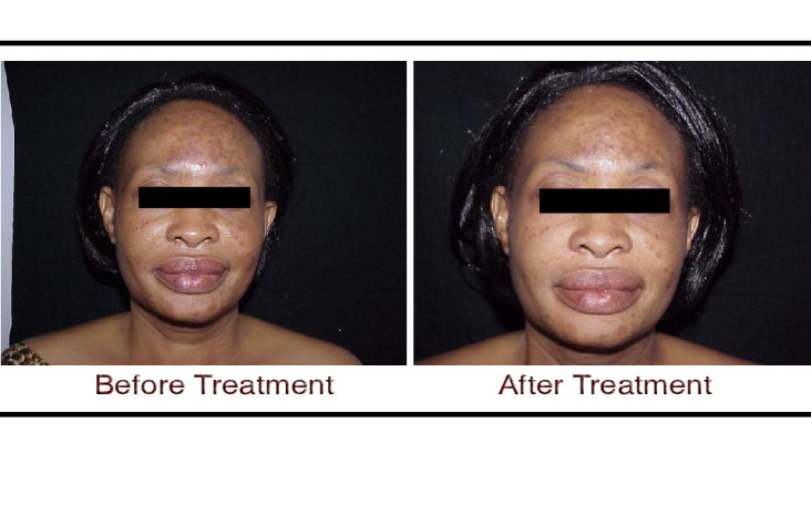, Thermage skin treatment in Hyderabad