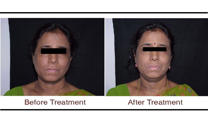 , Thermage before and after face