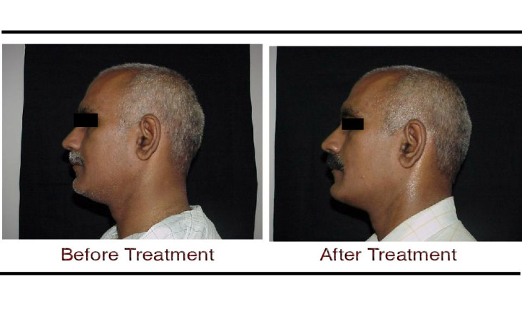 , Thermage Skin Tightening Laser Treatment