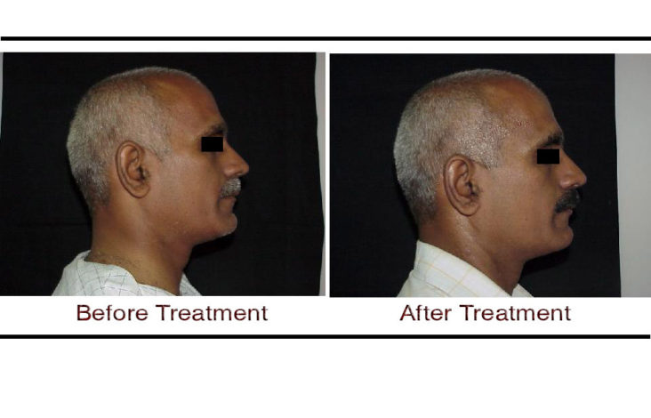 , Thermage CPT Non-Surgical Skin Tightening
