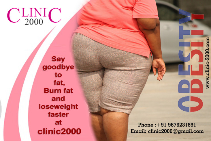 , Treatment of obesity in hyderabad