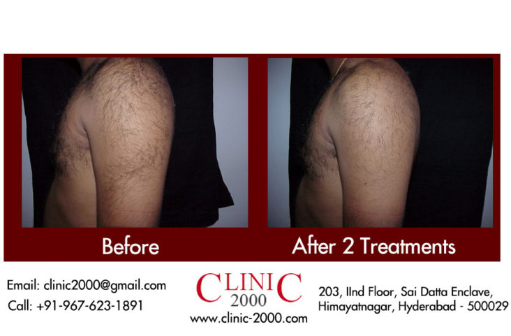 , Laser Hair Removal for the Arm