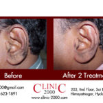 Get Healthy and Strong Tresses at Clinic2000, Get Healthy and Strong Tresses at Clinic2000