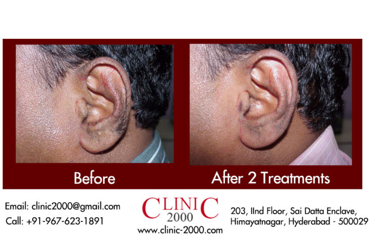 Laser Hair Removal for the Ears