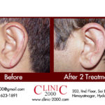 Ear Hair Removal for Men, Ear Hair Removal for Men