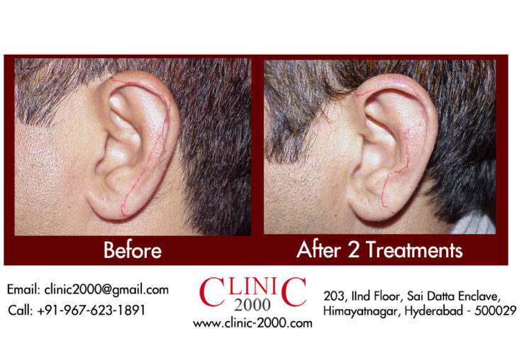 Ear Hair Permanent Removal, Ear Hair Permanent Removal