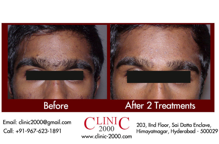 Permanent Hair Removal on Eyebrows, Permanent Hair Removal on Eyebrows