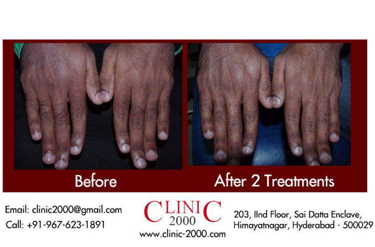, Laser Hair Removal Hands and Fingers