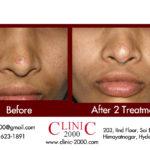 Mole Removal & Laser Mole Treatment, Scar Free Mole Removal Treatment