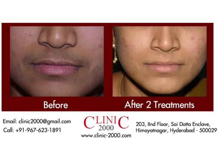 Laser treatment for upperlip hair removal, Laser treatment for upperlip hair removal
