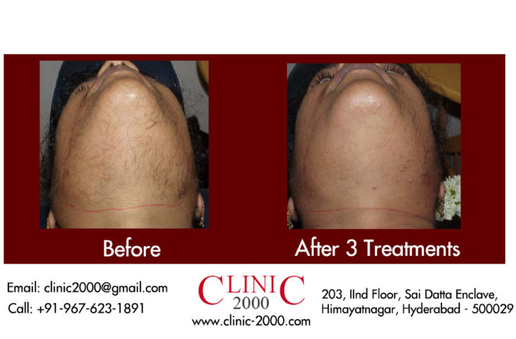 , Laser Hair Removal Treatment Before and After Pictures