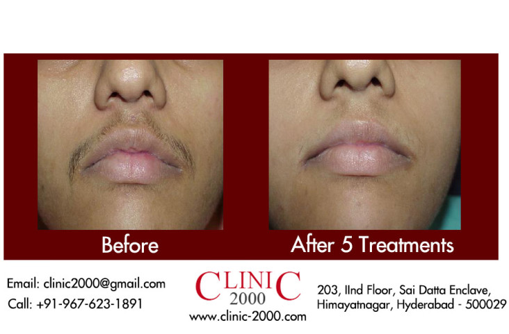 , Laser Hair Removal Permanent Treatment