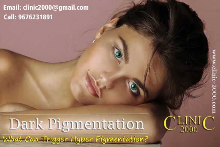 What is skin pigmentation, What is skin pigmentation