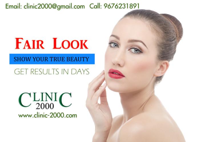 Fair Look Clinic In Hyderabad, Fair Look Clinic In Hyderabad