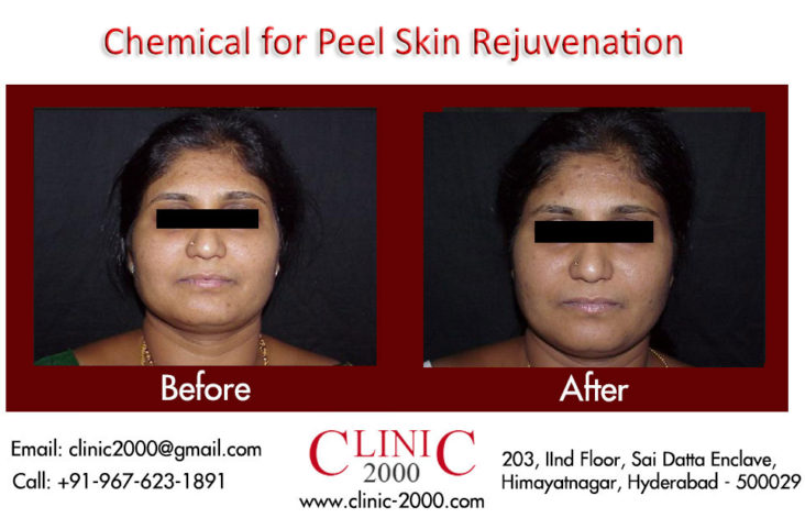 Chemical Skin peel treatments at Clinic@2000, Chemical Skin peel treatments at Clinic@2000