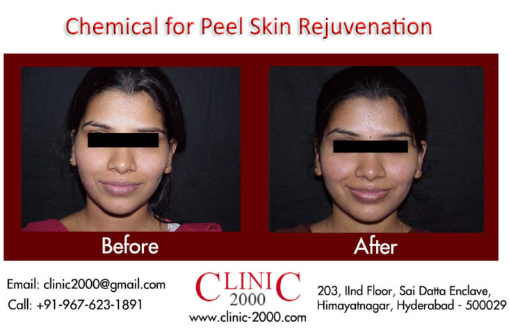 Best Skin peel Treatment in Hyderabad, Best Skin peel Treatment in Hyderabad