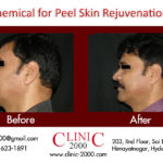 Get Younger looking skin with Skin Peel Treatment