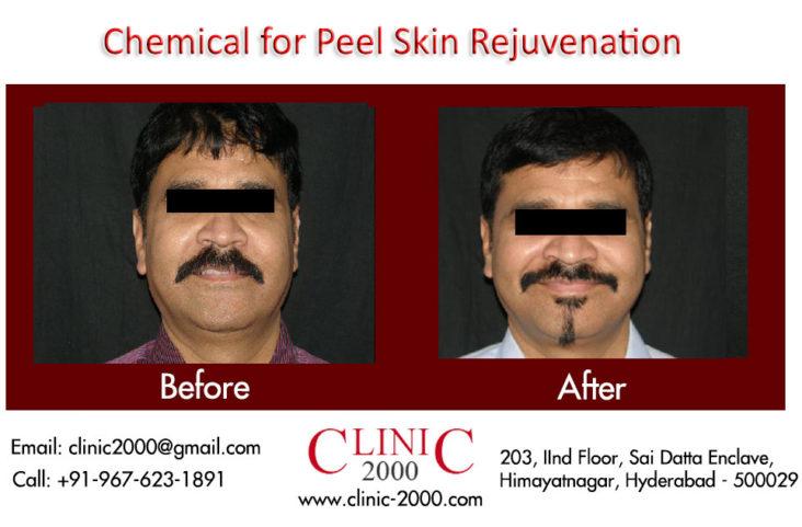 Laser & Skin Rejuvenation Clinic in Hyderabad, Laser & Skin Rejuvenation Clinic in Hyderabad