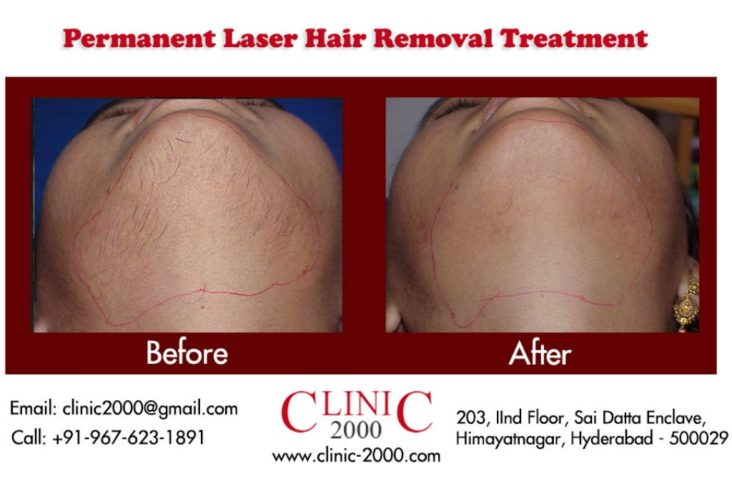Laser Chin Hair Removal, Laser Chin Hair Removal