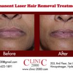 Laser hair removal pictures after each treatment