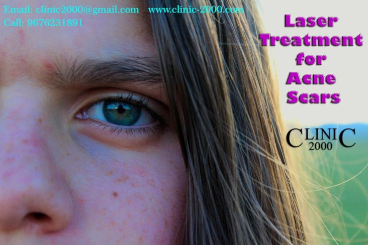 Best Acne Treatment in Hyderabad, Best Acne Treatment in Hyderabad