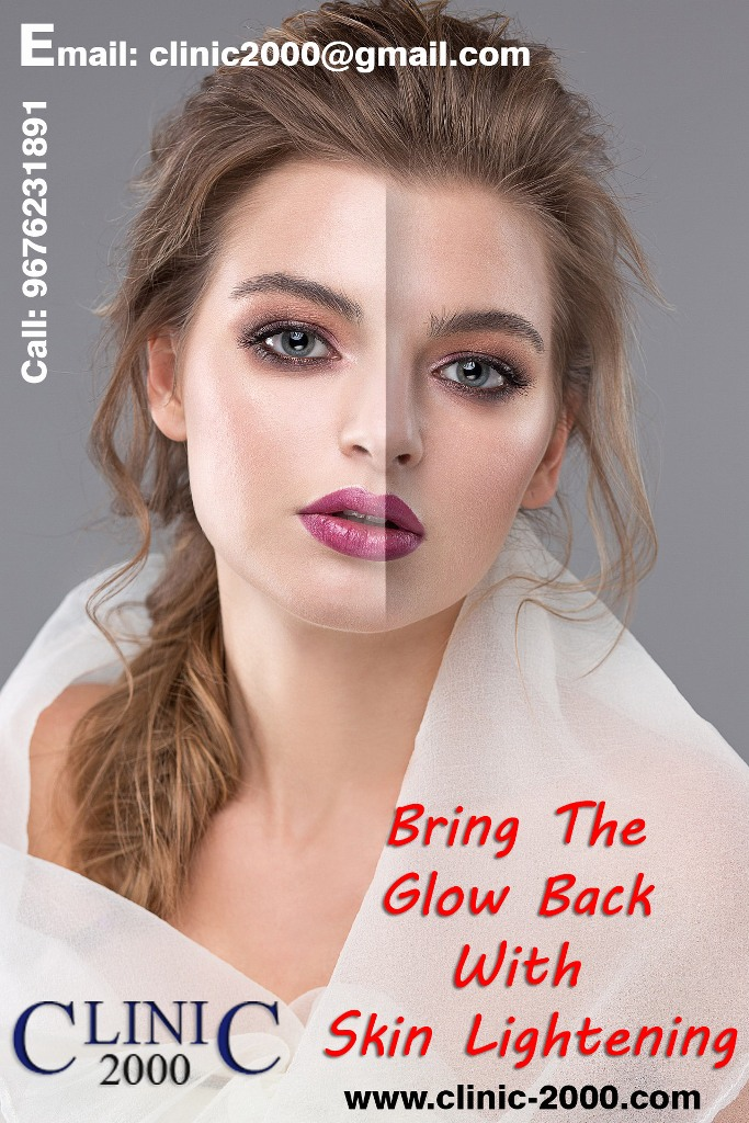 Skin Lightening Treatment at Clinic 2000, Skin Lightening Treatment at Clinic 2000