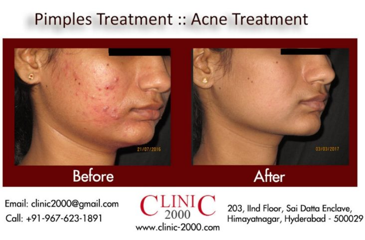 Acne Treatment, Acne Treatment