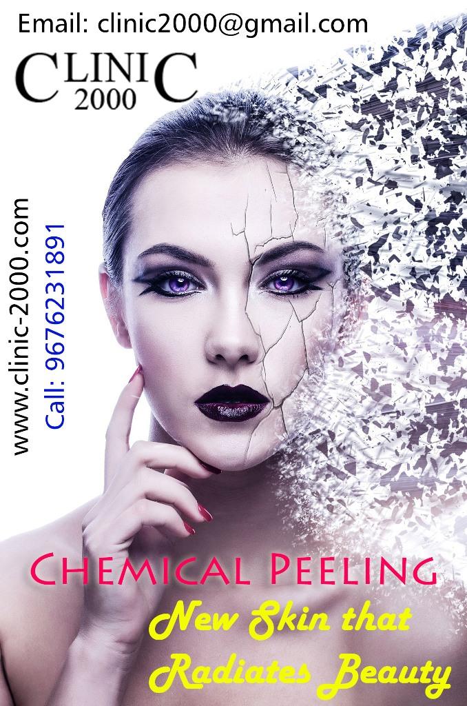 Chemical peeling, Chemical peeling