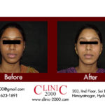 Complexion treatment for skin in Hyderabad