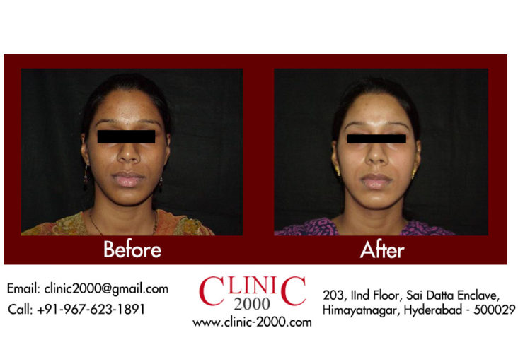 Complexion treatment for skin in Hyderabad, Complexion treatment for skin in Hyderabad