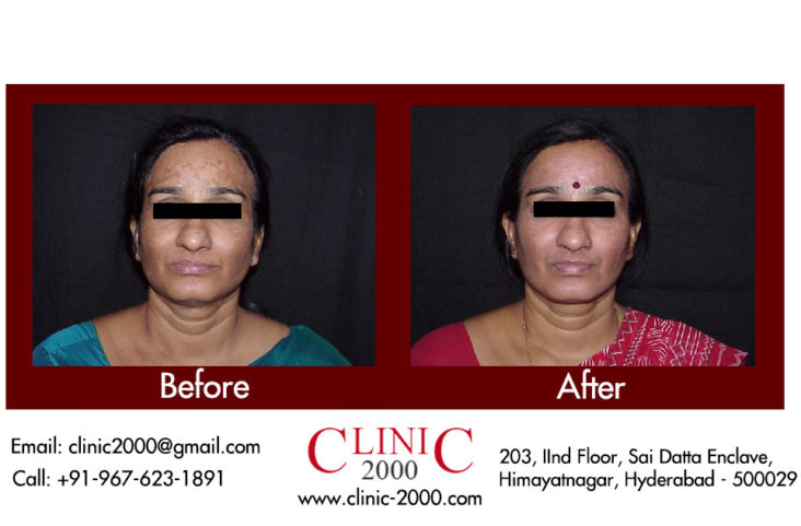 Get Flawless Clear skin with Complexion treatment, Get Flawless Clear skin  with Complexion treatment