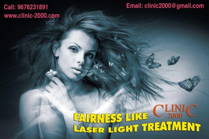 , Fairness Treatment